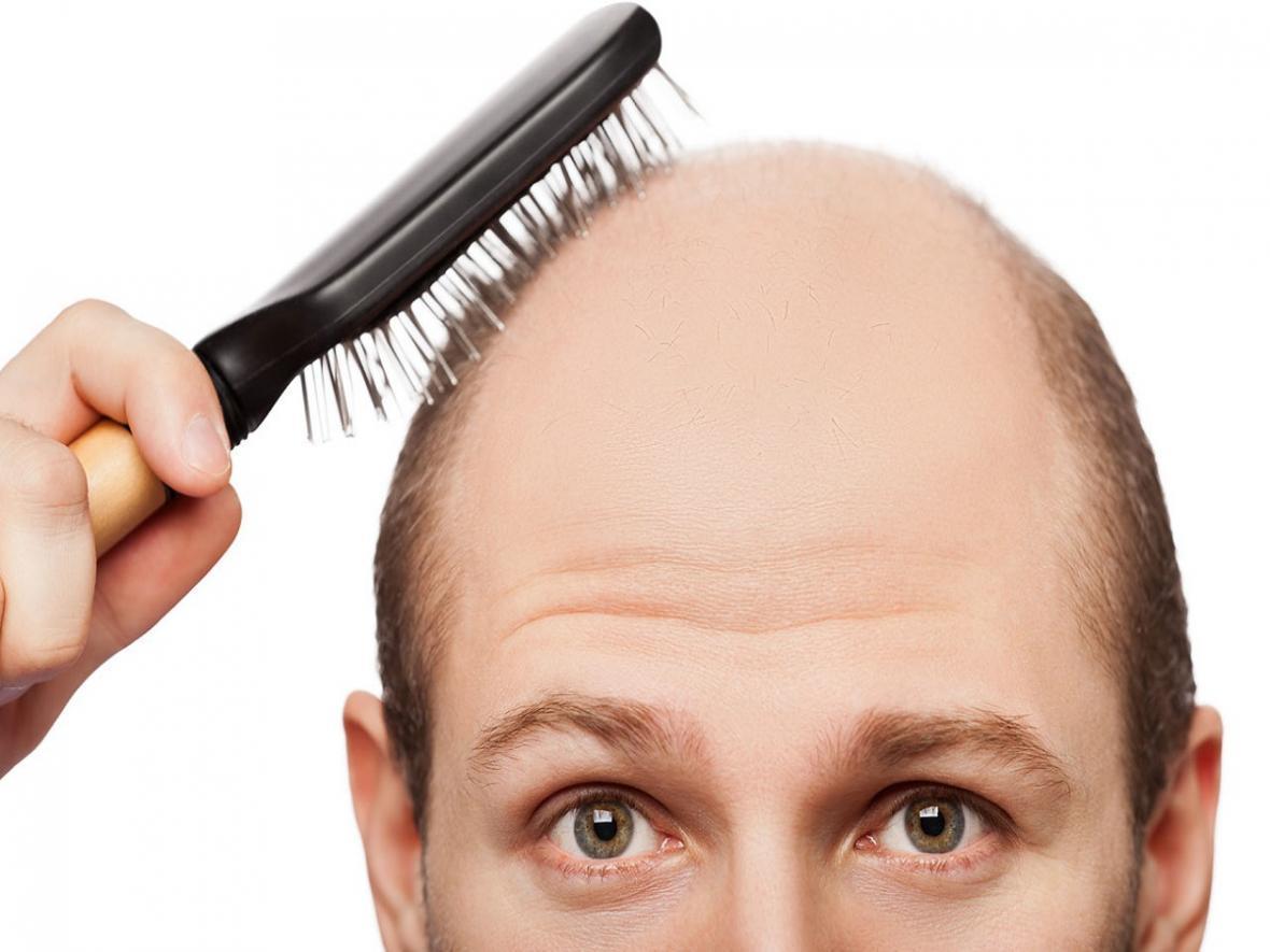 کدام ویتامین برای درمان و جلوگیری از ریزش مو مفید است؟