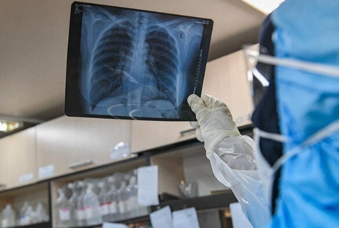 حقیقت کاهش سطح اکسیژن در مبتلایان به ویروس کرونا فاش شد