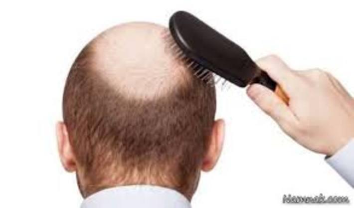 درمان طبی ریزش مو درمان طبی ریزش مو