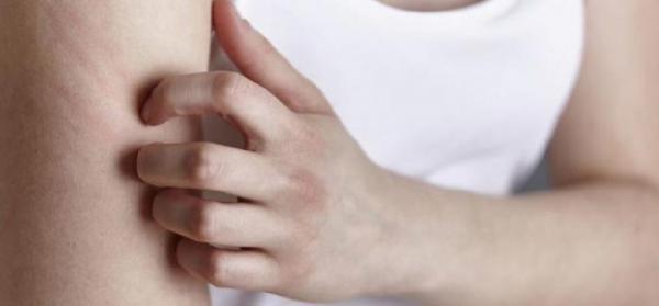 معرفی بعضی از انواع پماد درمان اگزما