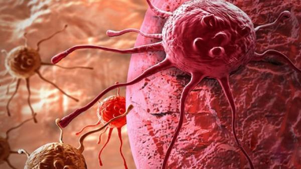 تومور های خوش خیم و بدخیم را بشناسید